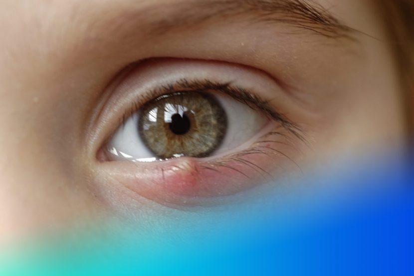 unidad oftalmologica salud visual
