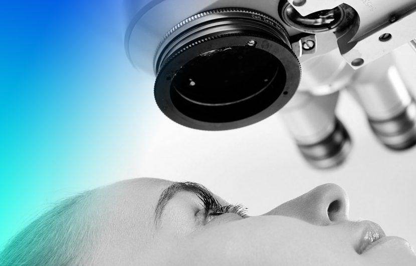 iridotomia láser para glaucoma