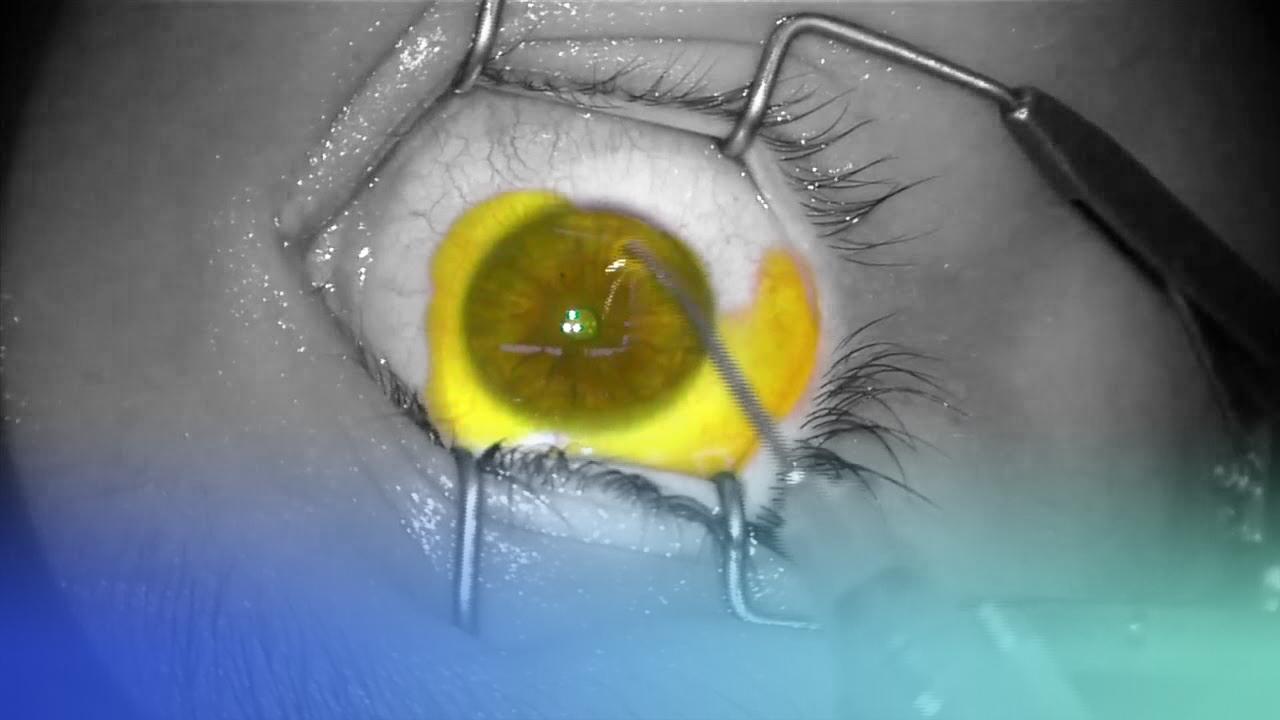 crosslinking corneal con el dr. jorge montaño